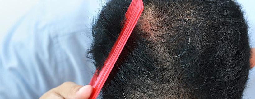 מסרק על שיער דליל