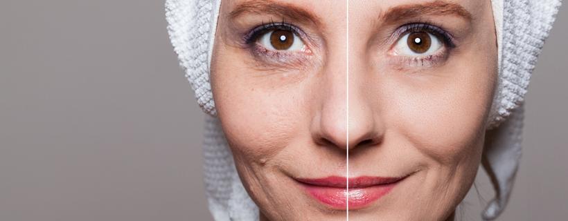 פנים של אישה מבוגרת שמחולקים לשני חלקים. לפני טיפול יופי, ואחרי טיפול יופי.